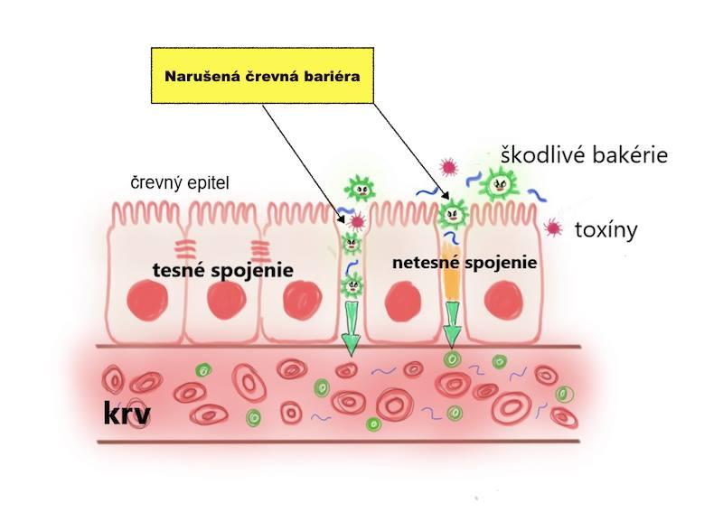 Deravé črevo a celiakia?